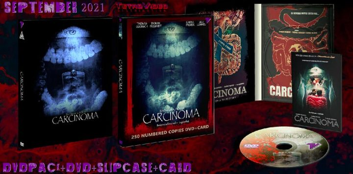 Carcinoma - dvd pack